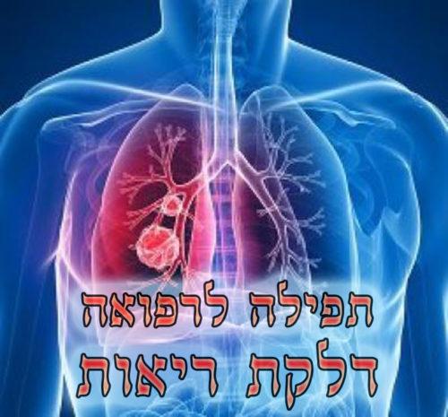 Photo of תפילה לדלקת ריאות